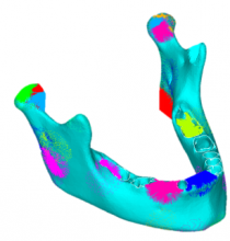 Finite element model of mandibular